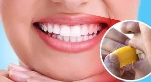 white teeth_1